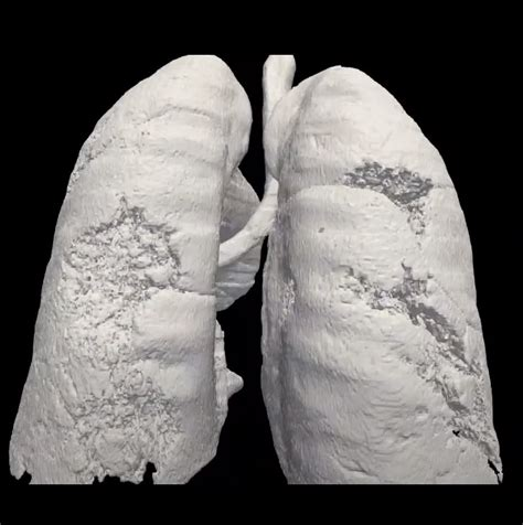 Project BreathEasy using Digital Twins of Lungs to Improve